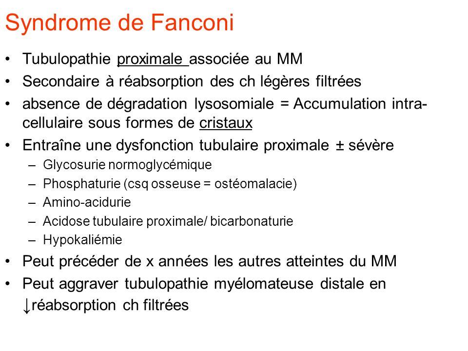 Syndrome de Fanconi Tubulopathie proximale associée au MM Secondaire à réabsorption des ch légères filtrées absence de dégradation lysosomiale = Accum