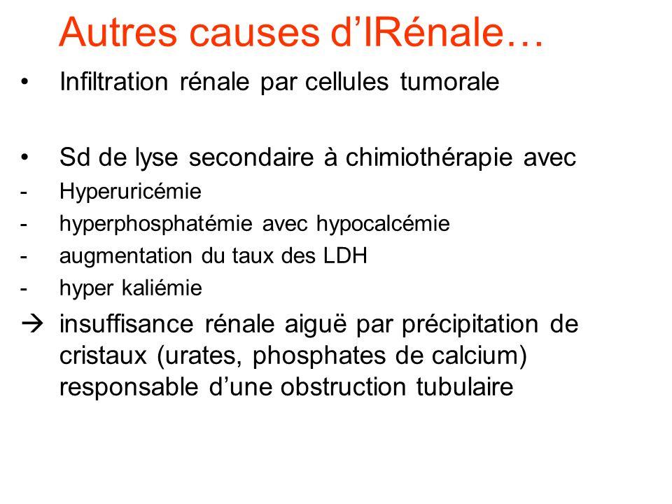 Autres causes dIRénale… Infiltration rénale par cellules tumorale Sd de lyse secondaire à chimiothérapie avec -Hyperuricémie -hyperphosphatémie avec h