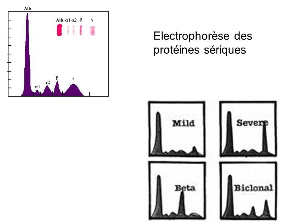 Néphropathies liées à des dépôts dIg Dépôts organisés Fibrilles –Amylose –(GN fibrillaire non amyloïde) Microtubules –Immunotactoïde = GOMMID (Glomerulonephritis with Organized Microtubular Monoclonal Immunoglobulin Deposits) –Cryoglobulinémie type 1 ou 2 Cristaux –Sd de Fanconi Dépôts non organisés = granuleux = MIDD ( Monoclonal Immunoglobulin Deposition Disease) Chaînes légères = LCDD Chaînes lourdes = HCDD