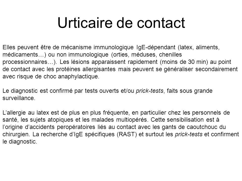 Urticaire de contact Elles peuvent être de mécanisme immunologique IgE-dépendant (latex, aliments, médicaments…) ou non immunologique (orties, méduses, chenilles processionnaires…).