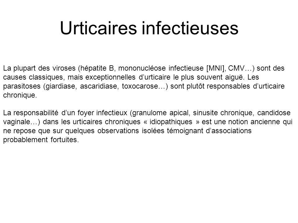 Urticaires infectieuses La plupart des viroses (hépatite B, mononucléose infectieuse [MNI], CMV…) sont des causes classiques, mais exceptionnelles durticaire le plus souvent aiguë.