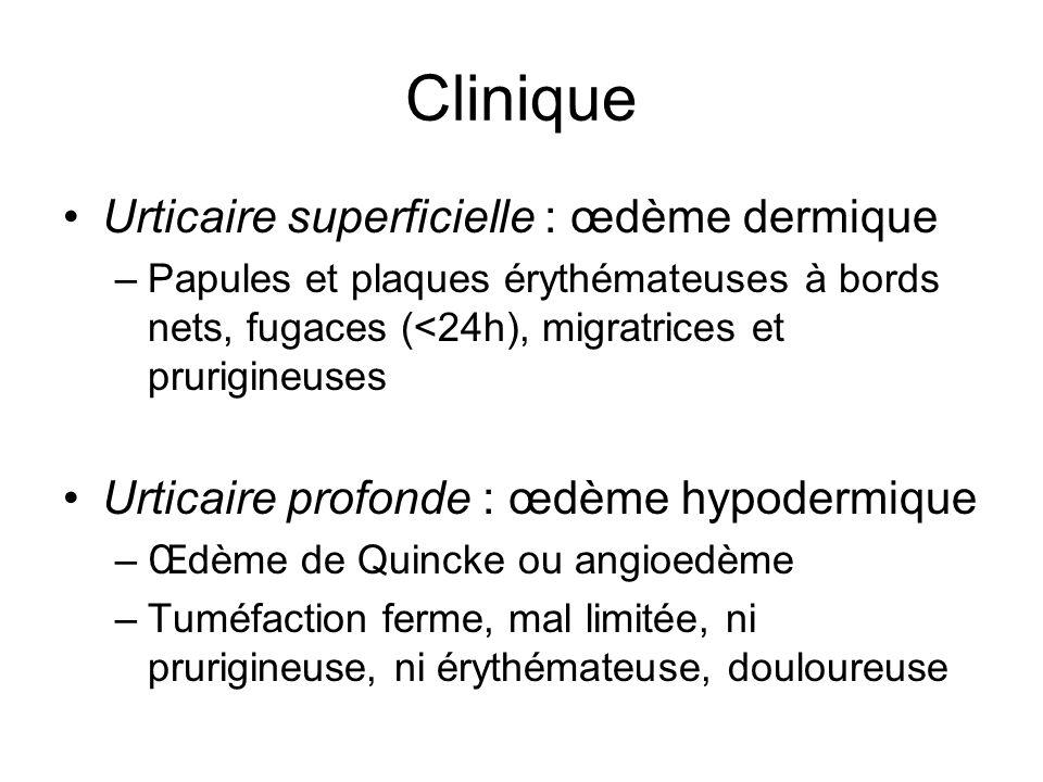 Clinique Urticaire superficielle : œdème dermique –Papules et plaques érythémateuses à bords nets, fugaces (<24h), migratrices et prurigineuses Urtica