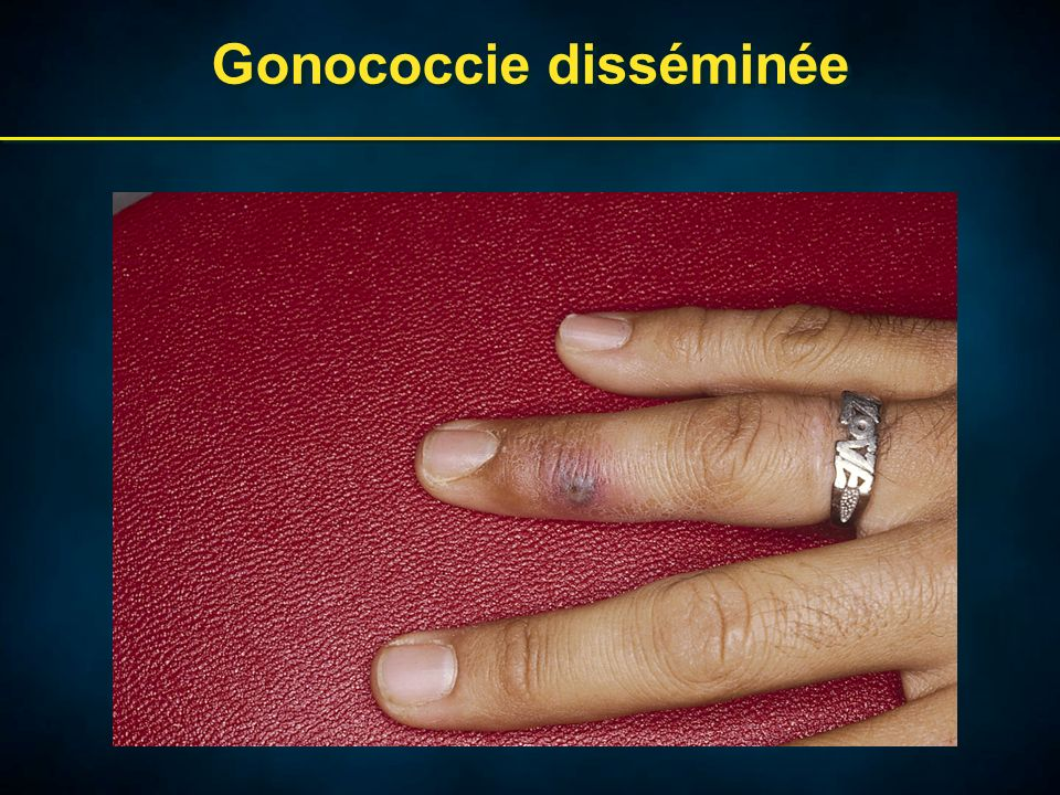 Cervicite mucopurulente