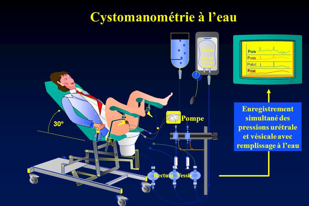Cystomanométrie à leau Cystomanométrie à leau Pura 1000 ml POCHE D EAU STERILE Pves Pdet Pompe Pabd Enregistrement simultané des pressions urétrale et