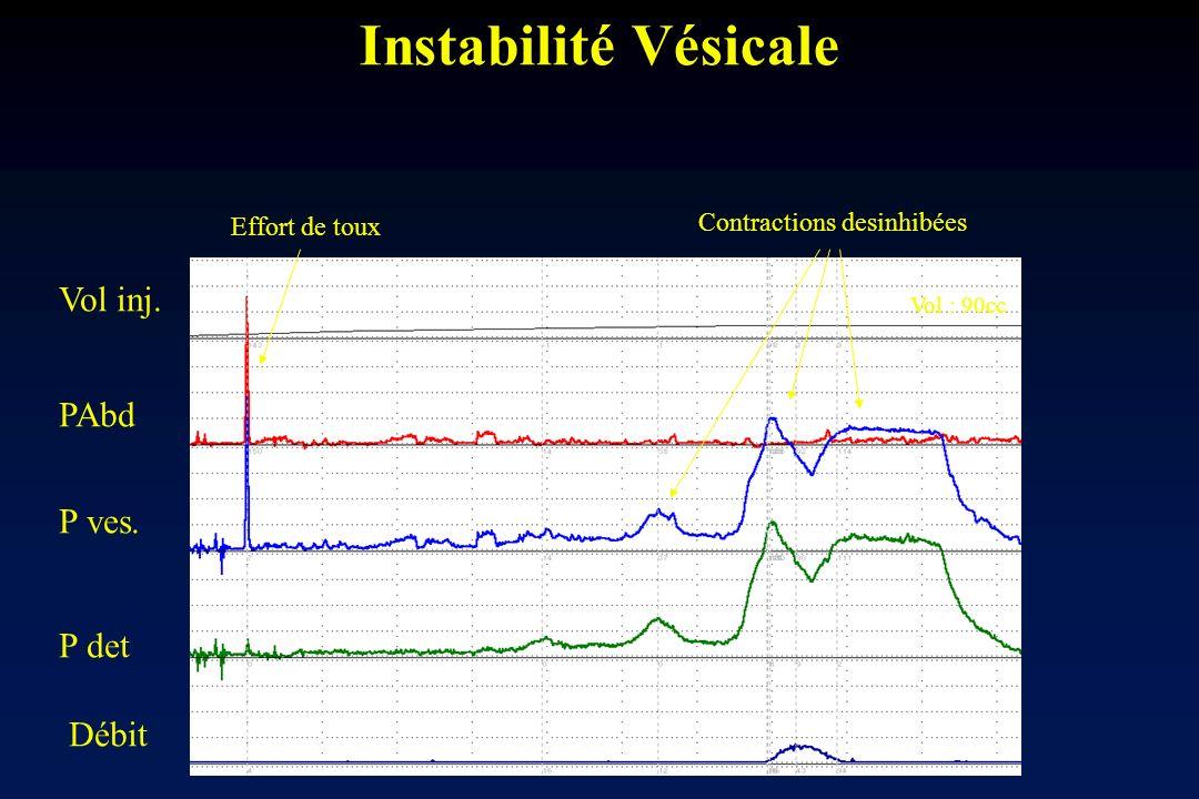 Instabilité Vésicale Vol inj. PAbd P ves. P det Débit Effort de toux Contractions desinhibées Vol : 90cc