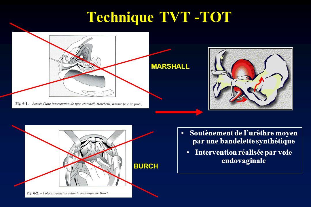 Technique TVT -TOT Soutènement de lurèthre moyen par une bandelette synthétique Intervention réalisée par voie endovaginale BURCH MARSHALL