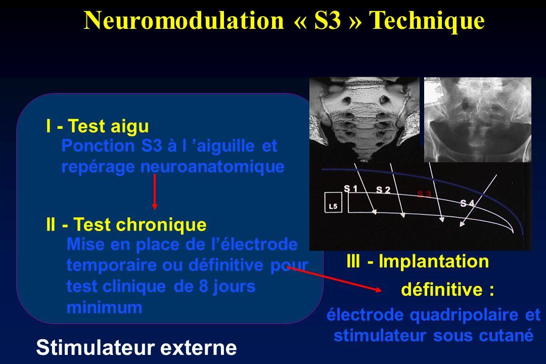Neuromodulation « S3 » Technique III - Implantation électrode quadripolaire et stimulateur sous cutané définitive : I - Test aigu Ponction S3 à l aigu