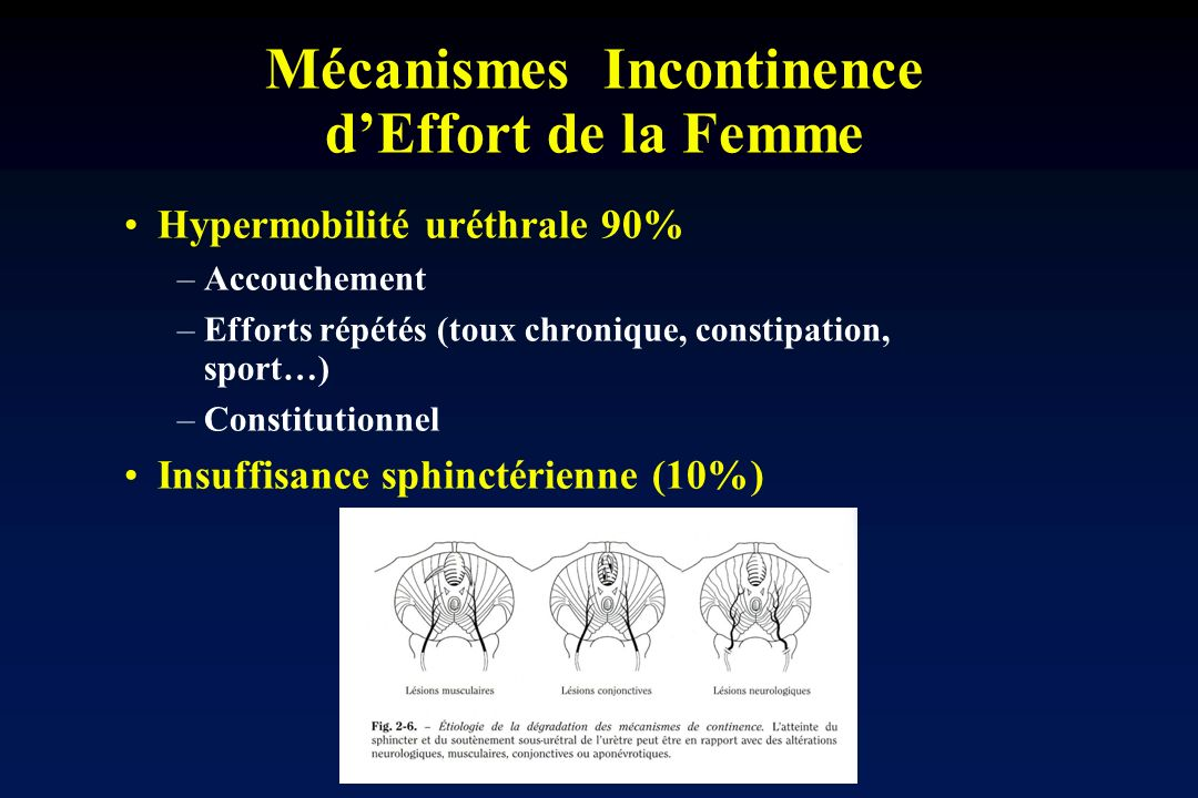 Mécanismes Incontinence dEffort de la Femme Hypermobilité uréthrale 90% –Accouchement –Efforts répétés (toux chronique, constipation, sport…) –Constit