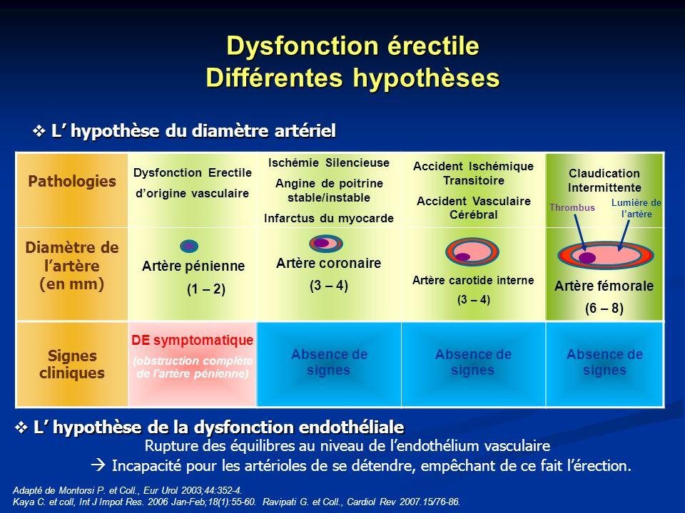Pathologies Dysfonction Erectile dorigine vasculaire Ischémie Silencieuse Angine de poitrine stable/instable Infarctus du myocarde Accident Ischémique