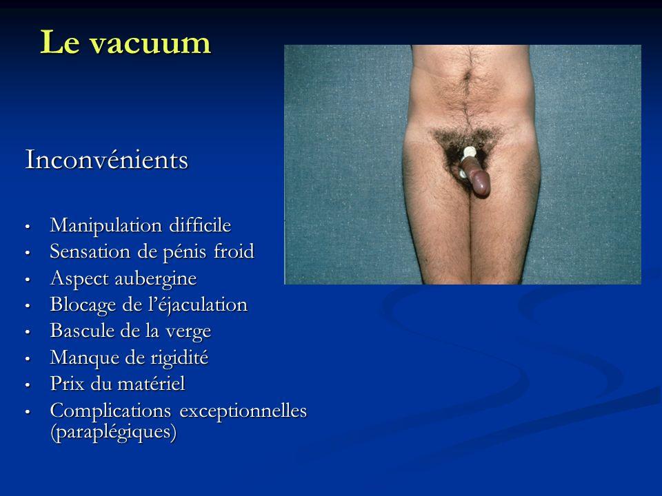 Le vacuum Inconvénients Manipulation difficile Manipulation difficile Sensation de pénis froid Sensation de pénis froid Aspect aubergine Aspect auberg