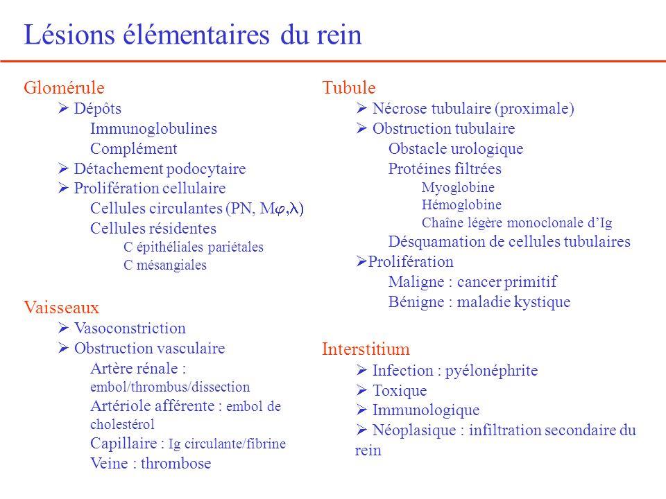 Lésions élémentaires du rein Glomérule Dépôts Immunoglobulines Complément Détachement podocytaire Prolifération cellulaire Cellules circulantes (PN, M