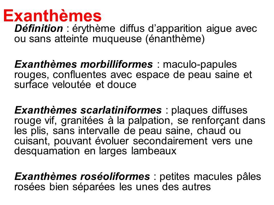 Exanthèmes Définition : érythème diffus dapparition aigue avec ou sans atteinte muqueuse (énanthème) Exanthèmes morbilliformes : maculo-papules rouges