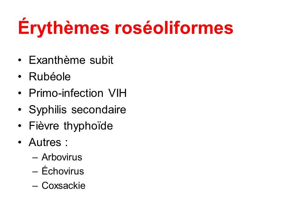 Érythèmes roséoliformes Exanthème subit Rubéole Primo-infection VIH Syphilis secondaire Fièvre thyphoïde Autres : –Arbovirus –Échovirus –Coxsackie