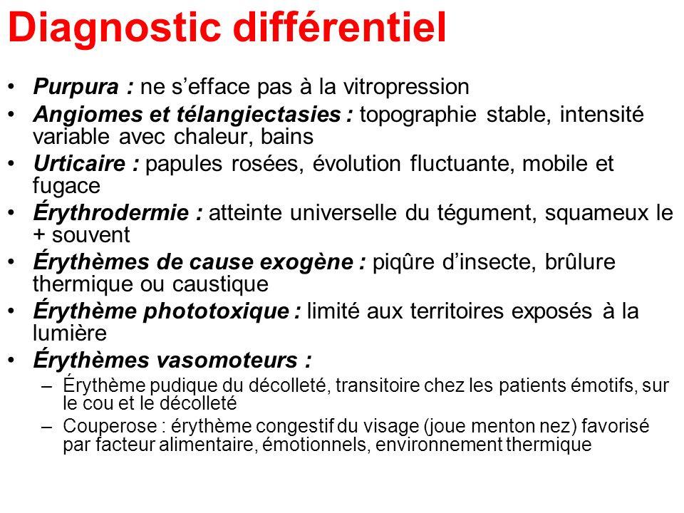 Diagnostic différentiel Purpura : ne sefface pas à la vitropression Angiomes et télangiectasies : topographie stable, intensité variable avec chaleur,