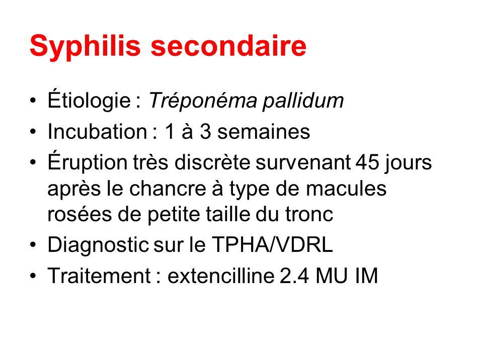 Syphilis secondaire Étiologie : Tréponéma pallidum Incubation : 1 à 3 semaines Éruption très discrète survenant 45 jours après le chancre à type de ma