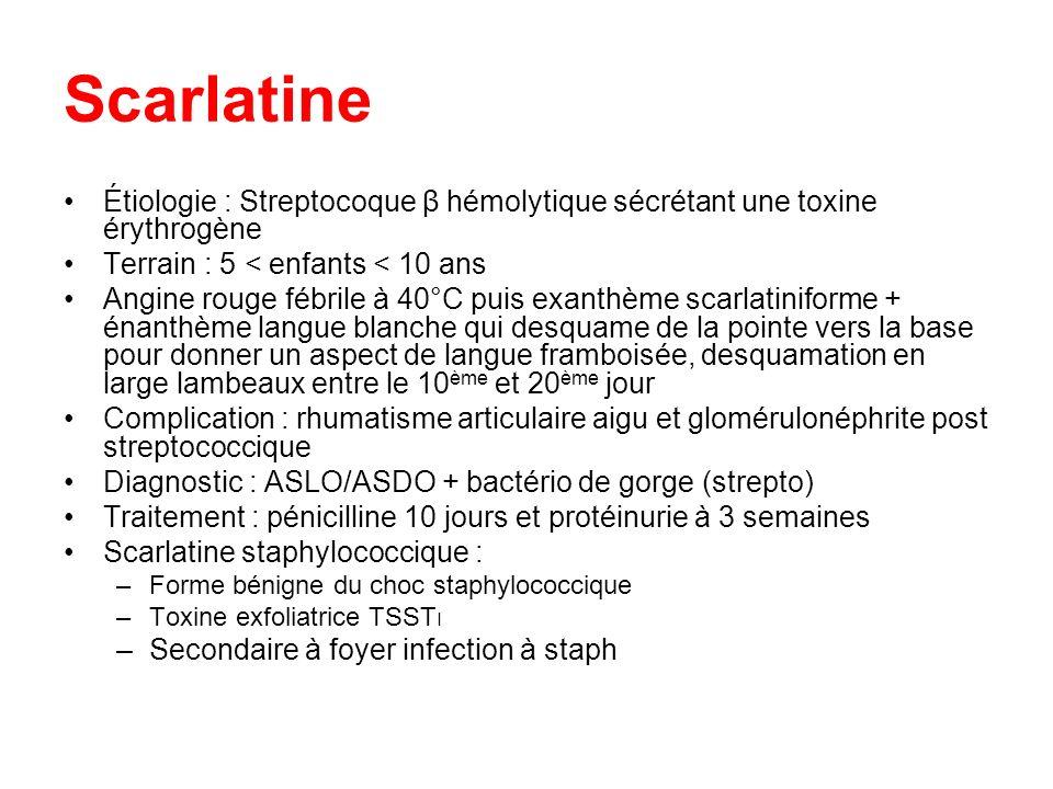 Scarlatine Étiologie : Streptocoque β hémolytique sécrétant une toxine érythrogène Terrain : 5 < enfants < 10 ans Angine rouge fébrile à 40°C puis exa