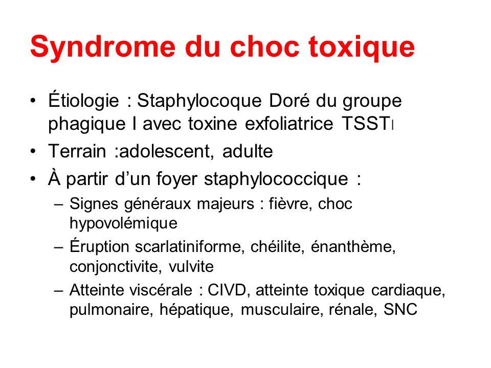 Syndrome du choc toxique Étiologie : Staphylocoque Doré du groupe phagique I avec toxine exfoliatrice TSST I Terrain :adolescent, adulte À partir dun