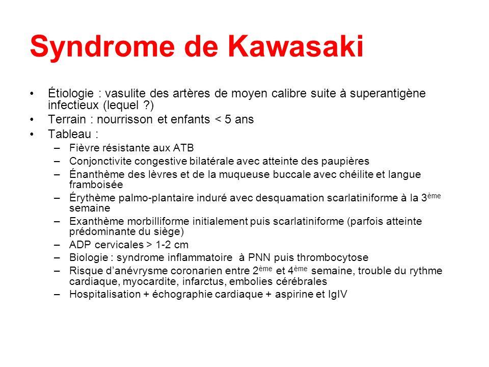 Syndrome de Kawasaki Étiologie : vasulite des artères de moyen calibre suite à superantigène infectieux (lequel ?) Terrain : nourrisson et enfants < 5