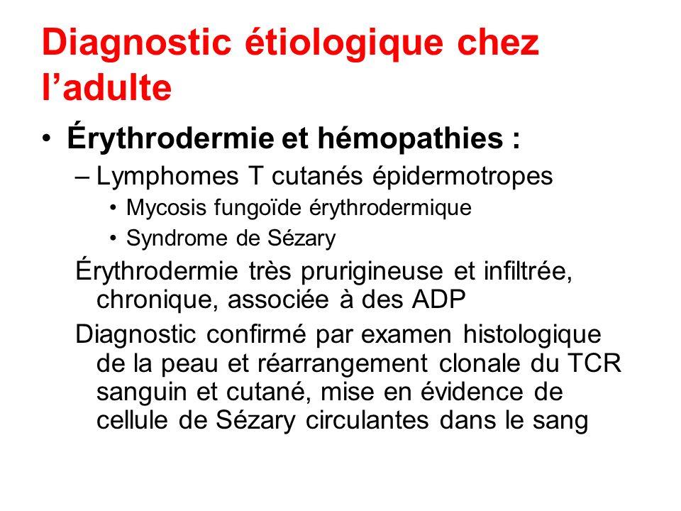 Diagnostic étiologique chez ladulte Érythrodermie et hémopathies : –Lymphomes T cutanés épidermotropes Mycosis fungoïde érythrodermique Syndrome de Sé