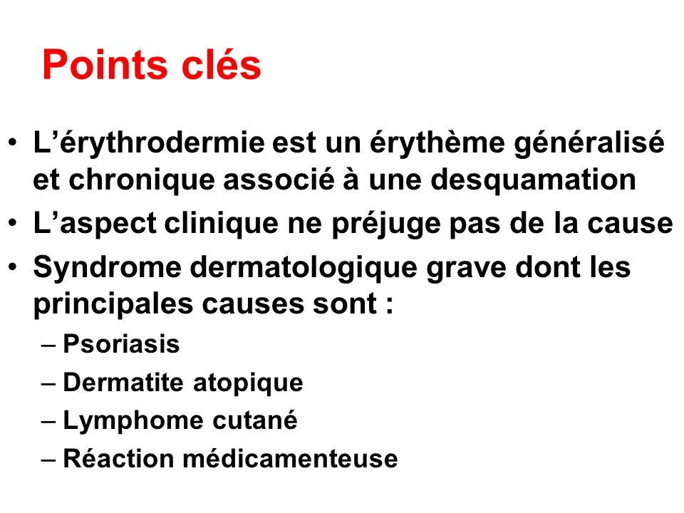 Points clés Lérythrodermie est un érythème généralisé et chronique associé à une desquamation Laspect clinique ne préjuge pas de la cause Syndrome der