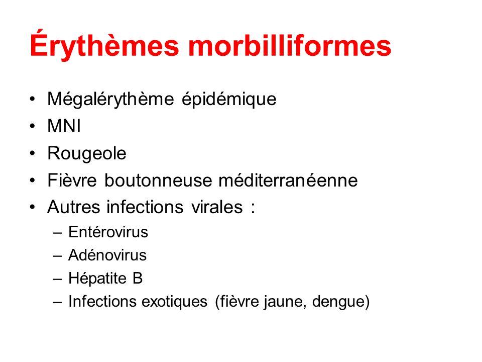 Érythèmes morbilliformes Mégalérythème épidémique MNI Rougeole Fièvre boutonneuse méditerranéenne Autres infections virales : –Entérovirus –Adénovirus