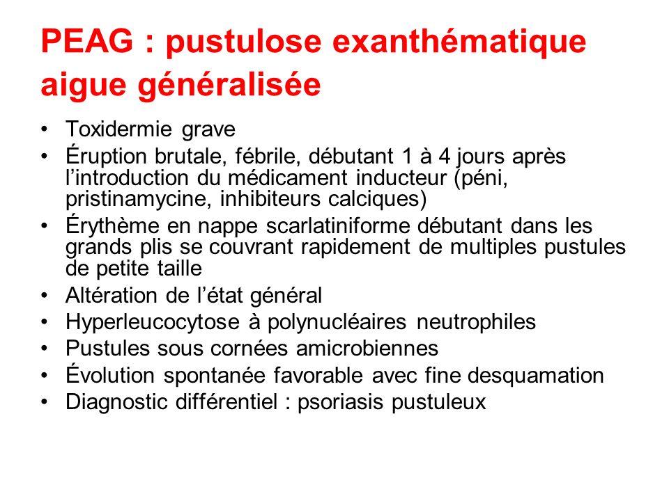 PEAG : pustulose exanthématique aigue généralisée Toxidermie grave Éruption brutale, fébrile, débutant 1 à 4 jours après lintroduction du médicament i