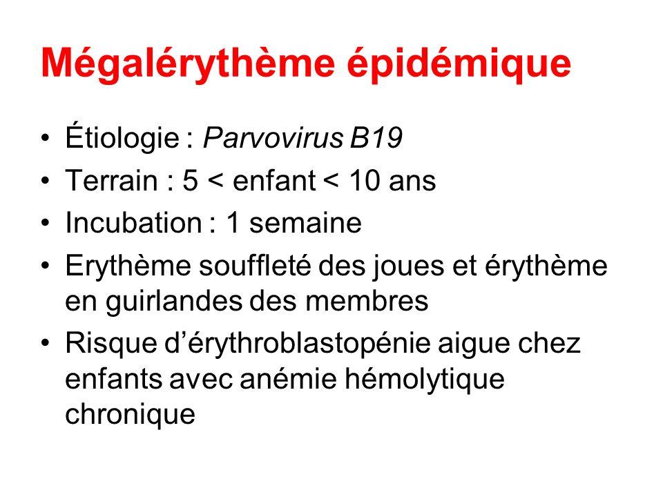 Mégalérythème épidémique Étiologie : Parvovirus B19 Terrain : 5 < enfant < 10 ans Incubation : 1 semaine Erythème souffleté des joues et érythème en g