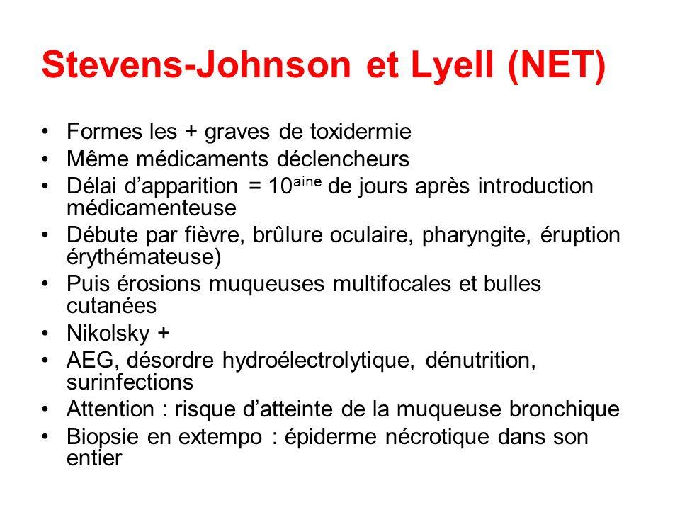 Stevens-Johnson et Lyell (NET) Formes les + graves de toxidermie Même médicaments déclencheurs Délai dapparition = 10 aine de jours après introduction