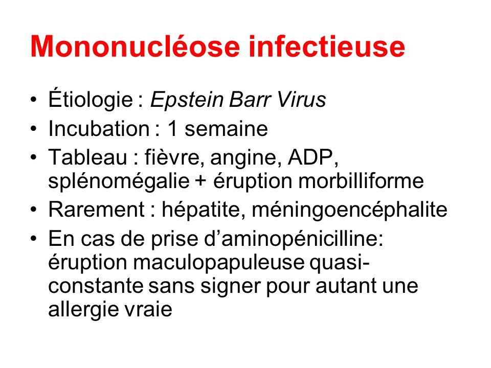 Mononucléose infectieuse Étiologie : Epstein Barr Virus Incubation : 1 semaine Tableau : fièvre, angine, ADP, splénomégalie + éruption morbilliforme R