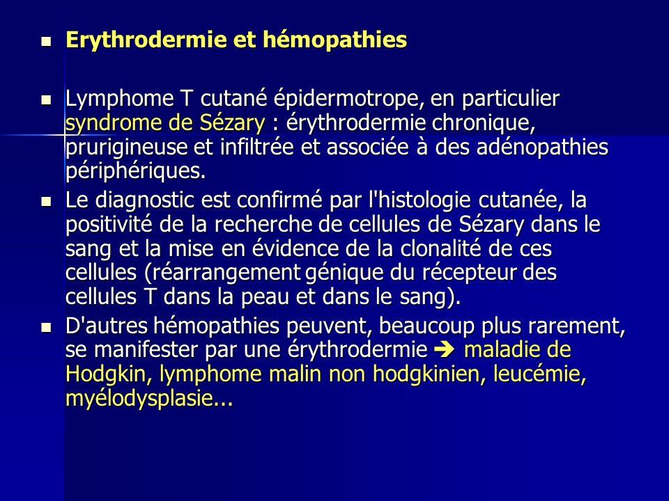 Erythrodermie et hémopathies Erythrodermie et hémopathies Lymphome T cutané épidermotrope, en particulier syndrome de Sézary : érythrodermie chronique