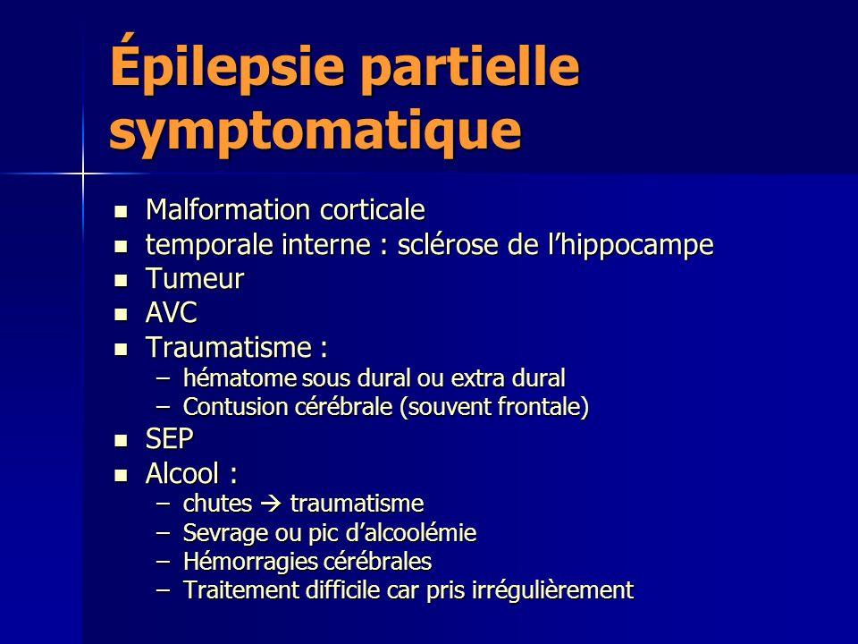 Épilepsie partielle symptomatique Malformation corticale Malformation corticale temporale interne : sclérose de lhippocampe temporale interne : scléro