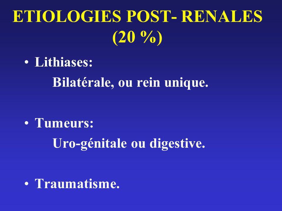 ETIOLOGIES POST- RENALES (20 %) Lithiases: Bilatérale, ou rein unique. Tumeurs: Uro-génitale ou digestive. Traumatisme.
