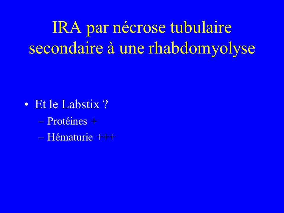 IRA par nécrose tubulaire secondaire à une rhabdomyolyse Et le Labstix ? –Protéines + –Hématurie +++