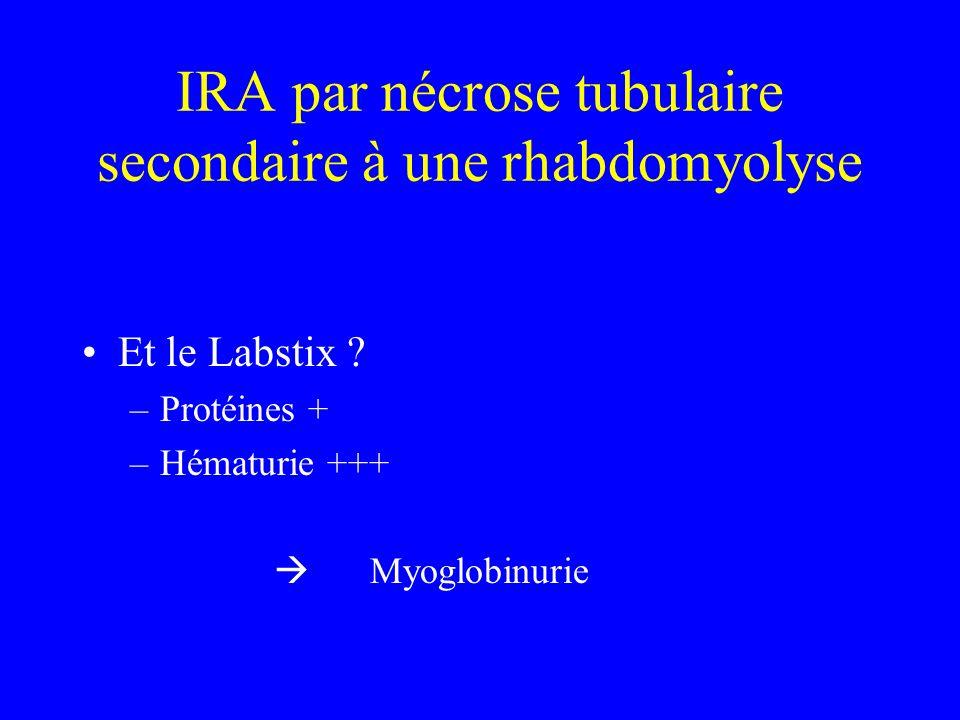 IRA par nécrose tubulaire secondaire à une rhabdomyolyse Et le Labstix ? –Protéines + –Hématurie +++ Myoglobinurie