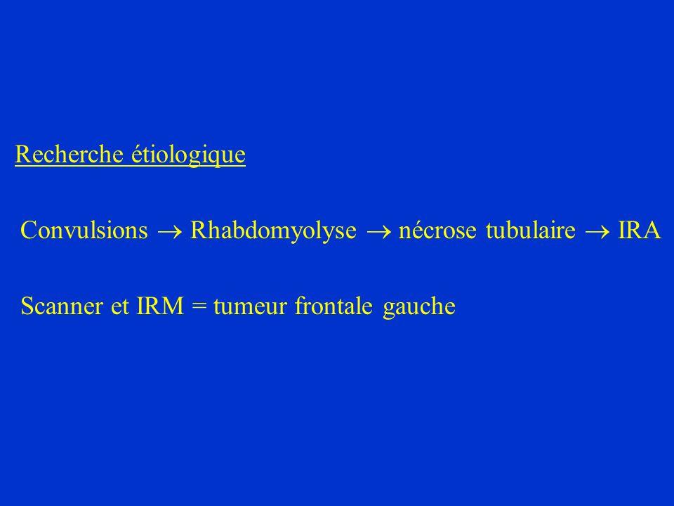 Recherche étiologique Convulsions Rhabdomyolyse nécrose tubulaire IRA Scanner et IRM = tumeur frontale gauche