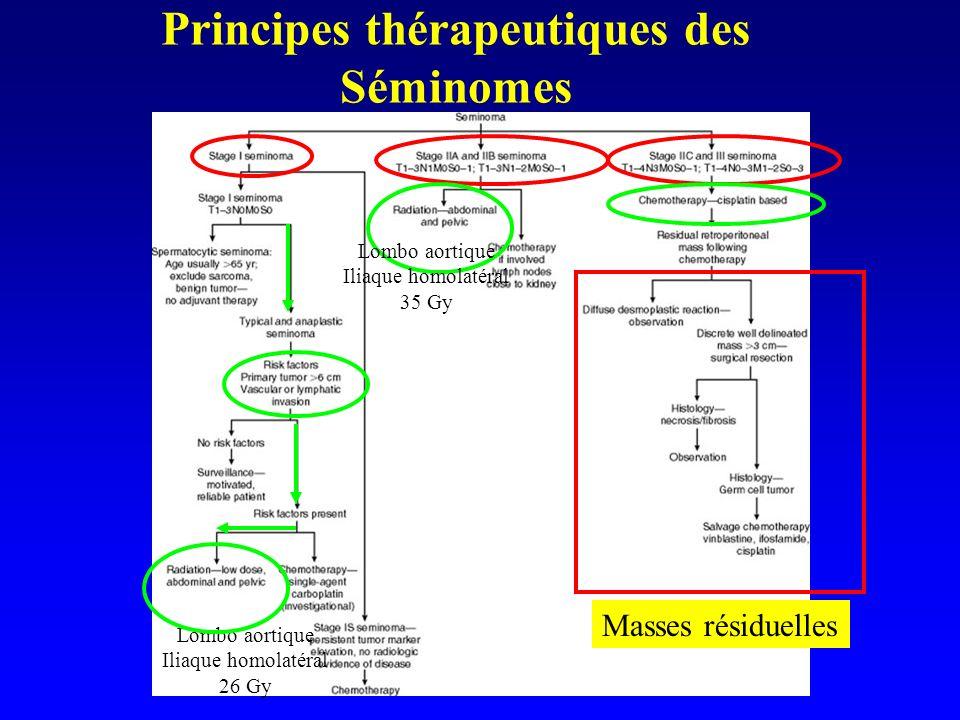 Principes thérapeutiques des Séminomes Lombo aortique Iliaque homolatéral 26 Gy Masses résiduelles Lombo aortique Iliaque homolatéral 35 Gy
