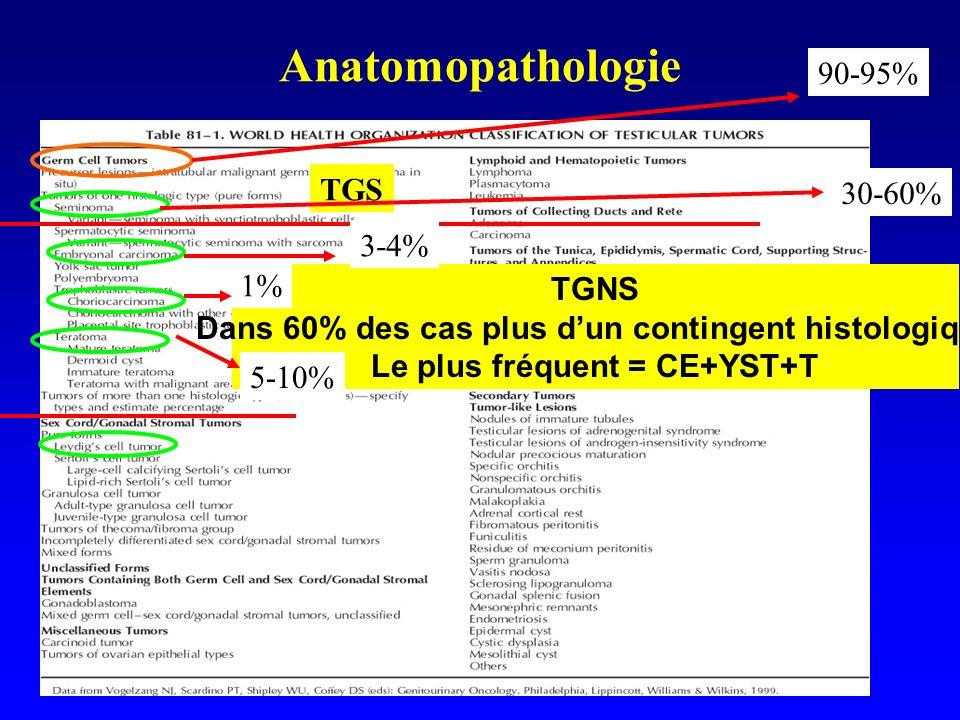 Anatomopathologie TGNS Dans 60% des cas plus dun contingent histologique Le plus fréquent = CE+YST+T TGS 90-95% 30-60% 3-4% 5-10% 1%
