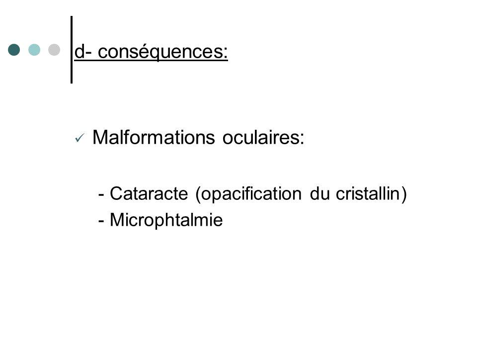 d- conséquences: Malformations oculaires: - Cataracte (opacification du cristallin) - Microphtalmie