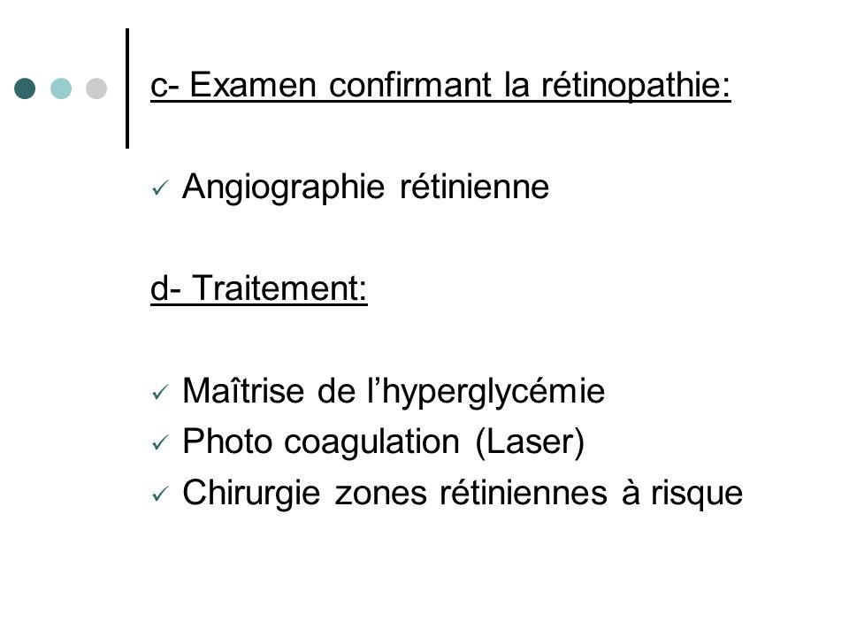 c- Examen confirmant la rétinopathie: Angiographie rétinienne d- Traitement: Maîtrise de lhyperglycémie Photo coagulation (Laser) Chirurgie zones réti