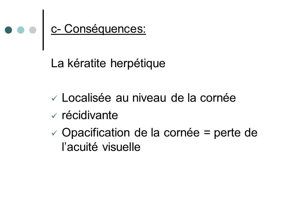c- Conséquences: La kératite herpétique Localisée au niveau de la cornée récidivante Opacification de la cornée = perte de lacuité visuelle