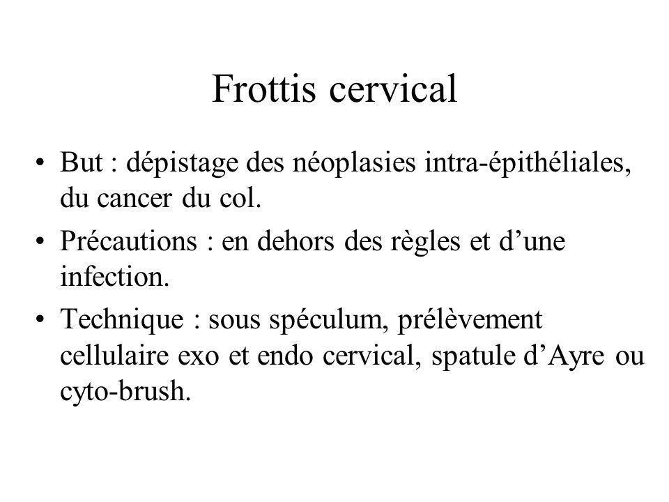 Frottis cervical But : dépistage des néoplasies intra-épithéliales, du cancer du col. Précautions : en dehors des règles et dune infection. Technique