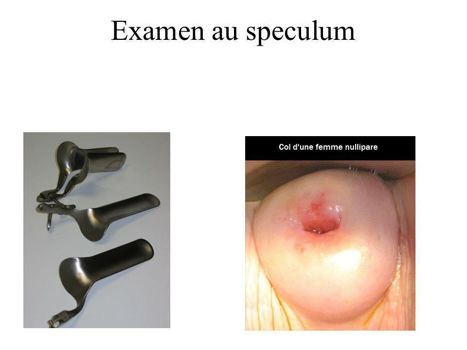 Examen au speculum