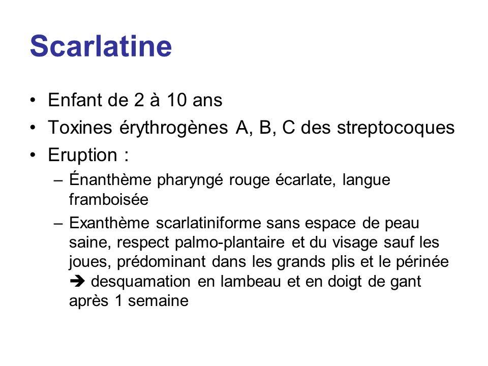 Scarlatine Enfant de 2 à 10 ans Toxines érythrogènes A, B, C des streptocoques Eruption : –Énanthème pharyngé rouge écarlate, langue framboisée –Exant