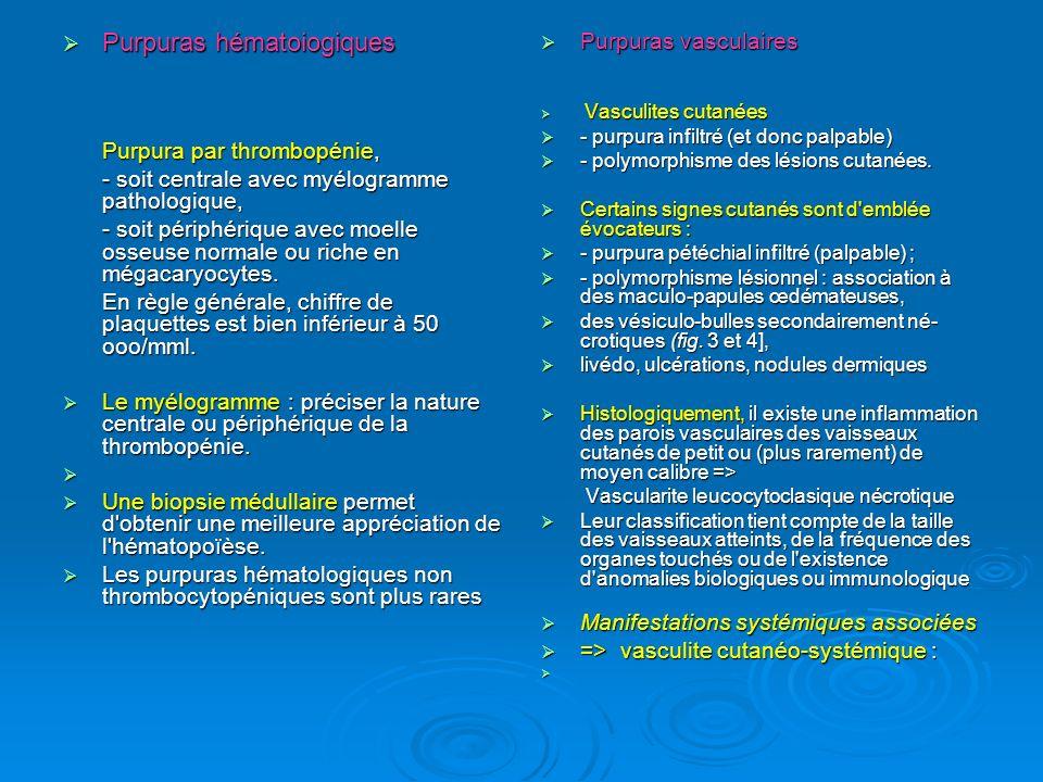 - Etiologies des purpuras vasculaires.- Etiologies des purpuras vasculaires.
