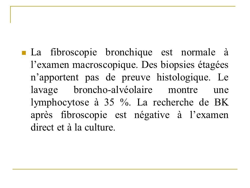 La fibroscopie bronchique est normale à lexamen macroscopique. Des biopsies étagées napportent pas de preuve histologique. Le lavage broncho-alvéolair