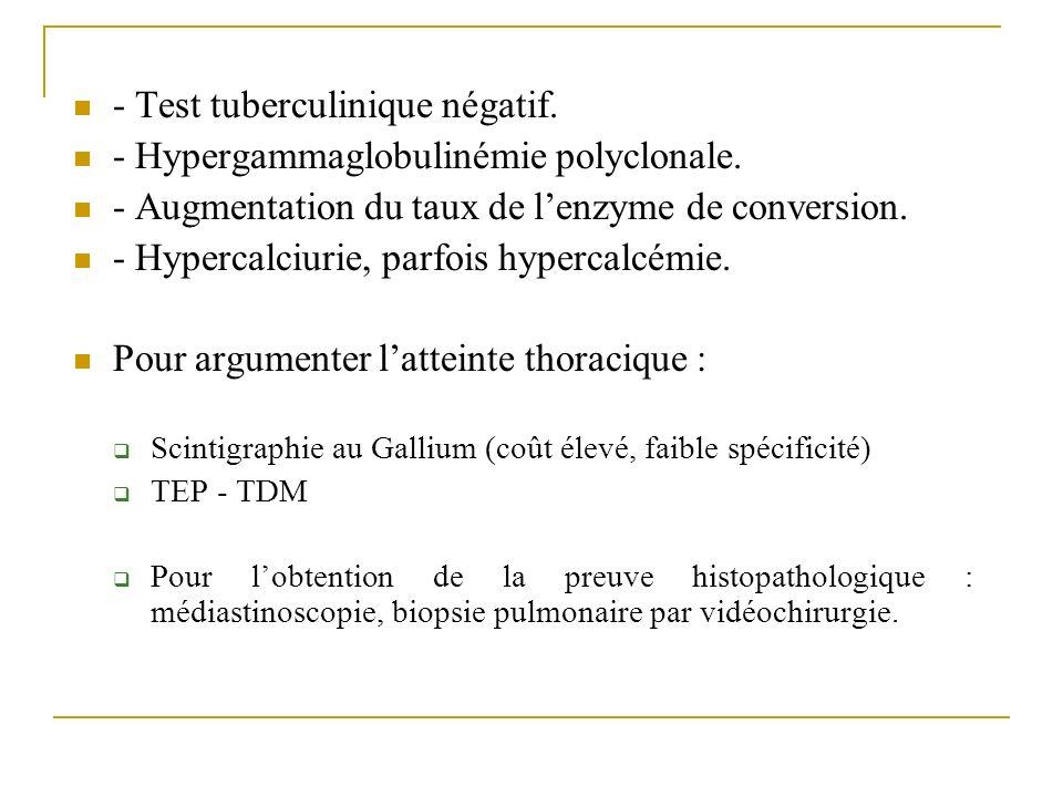 - Test tuberculinique négatif. - Hypergammaglobulinémie polyclonale. - Augmentation du taux de lenzyme de conversion. - Hypercalciurie, parfois hyperc
