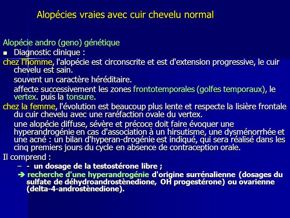 Alopécies vraies avec cuir chevelu normal Alopécie andro (geno) génétique Diagnostic clinique : Diagnostic clinique : chez l homme, l alopécie est circonscrite et est d extension progressive, le cuir chevelu est sain.