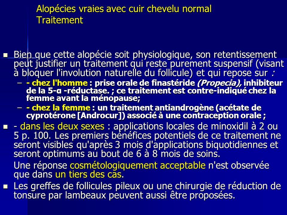 Alopécies vraies avec cuir chevelu normal Traitement Bien que cette alopécie soit physiologique, son retentissement peut justifier un traitement qui r