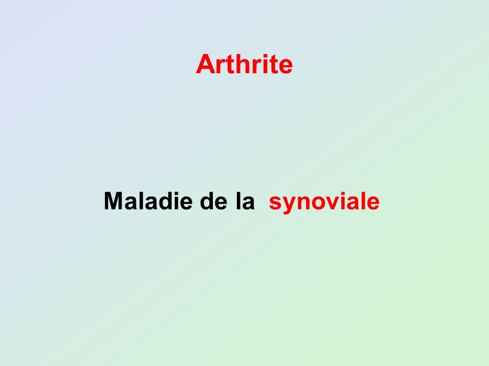 Arthrite Maladie de la synoviale