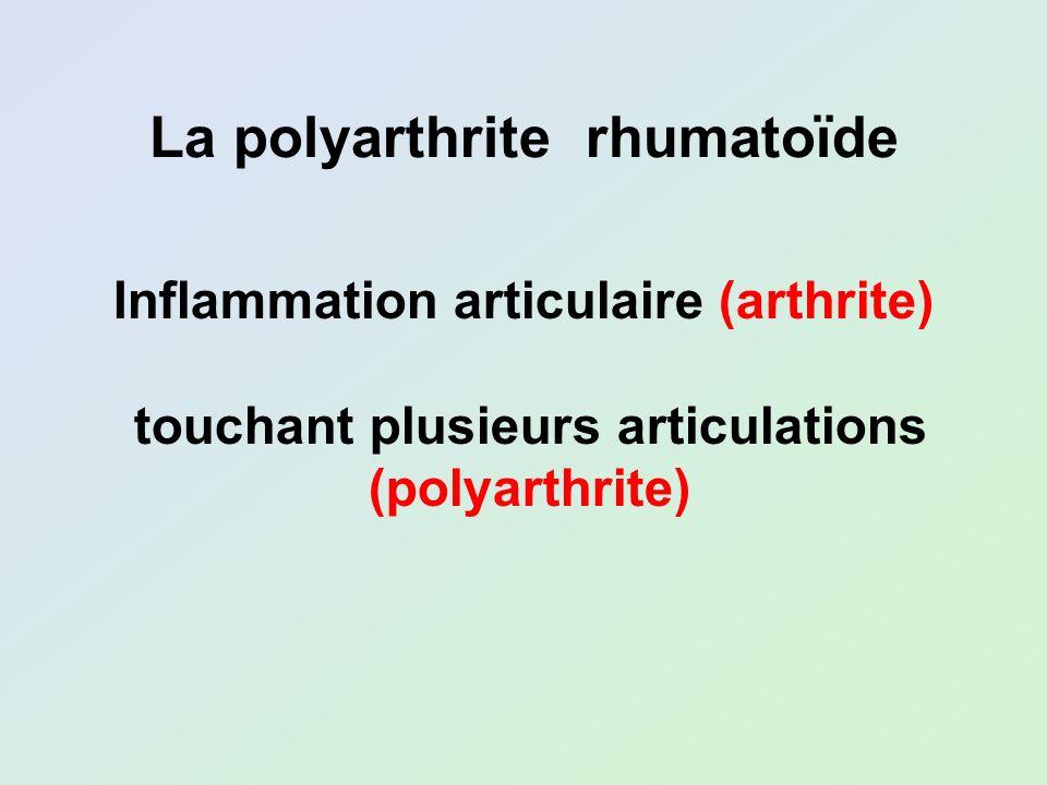 Inflammation articulaire (arthrite) touchant plusieurs articulations (polyarthrite) La polyarthrite rhumatoïde